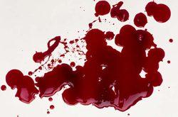 صوره تفسير حلم خروج الدم من الفرج , النزف عند ابن سيرين , الدم في المنام