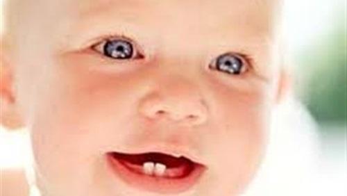 صوره علاج اسهال التسنين عند الاطفال , التخلص من الاسهال للرضع