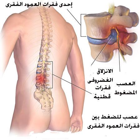 صوره الفقره السابعه في العمود الفقري , تعريف مبسط للعمود الفقري