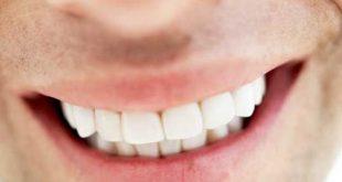 صور اسعار تركيب الاسنان في مصر , معلومات عن زراعة الاسنان