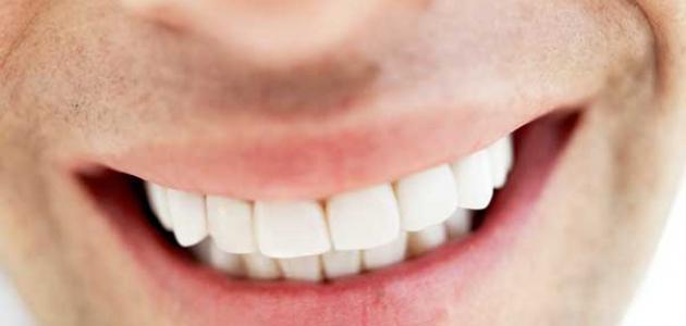 صوره اسعار تركيب الاسنان في مصر , معلومات عن زراعة الاسنان