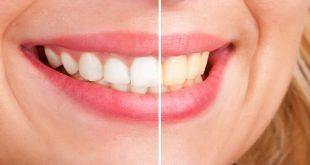 صورة فوائد الكركم للاسنان , تبيض الاسنان بالكركم