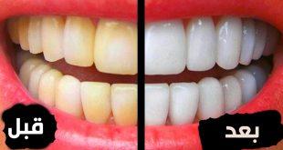صورة تبيض الاسنان في المنزل , خلطات لتبييض الاسنان