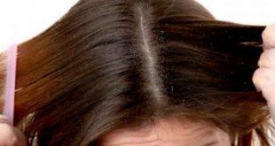 صورة علاج تساقط الشعر نهائيا , افضل علاج لقشرة الشعر والحكة