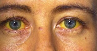 صورة التهاب الكبد بي , اعراض مرض الكبد الوبائي