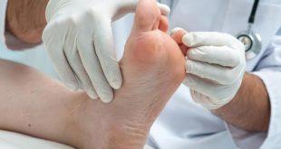 صورة أعراض مسمار القدم, علاج مسمار القدم نهائيا