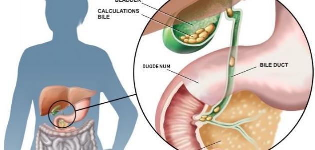 صورة اعراض حصوات المرارة, حصي المرارة وطرق علاجها