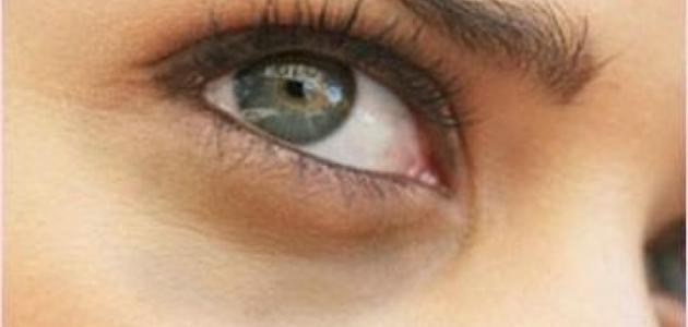 صورة أسباب سواد تحت العين, الهالات السوداء تحت العين