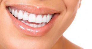 صورة خلطه تبيض الاسنان فورا, كيف ابيض أسناني