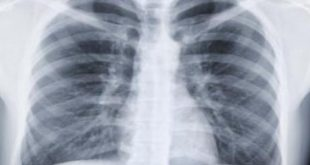 صورة التهاب ذات الرئة, أعراض التهاب ذات الرئة