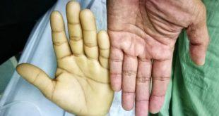 صورة اعراض فقر الدم, اعراض فقر الدم النفسيه