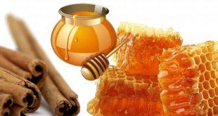 صورة فوائد القرفة والعسل للتنحيف, فوائد العسل والقرفة