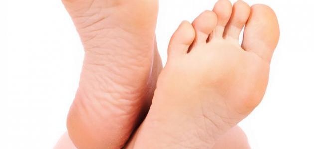 صورة طرق لعلاج تشقق القدمين, كيفية علاج القدمين