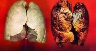 صورة أضرار التدخين علي الجسم, ما أضرار التدخين علي الجلد