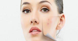 صورة وصفة لازالة البقع السوداء من الوجه, طرق علاج بقع الوجه