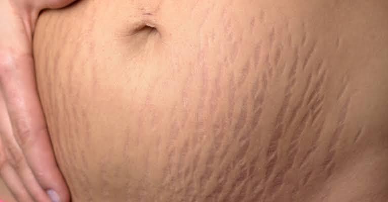 صورة اكبر لعلاجات التشققات stretch marks
